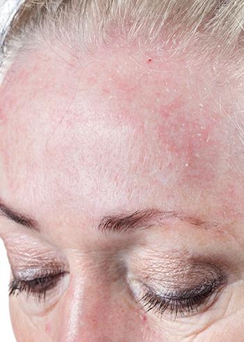 Seborrheic_Dermatitis