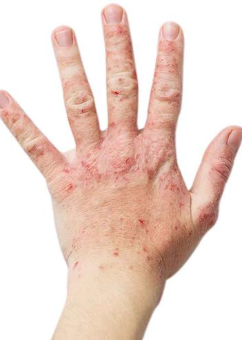 atopic-dermatitis-eczema