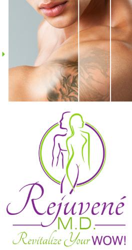 remove_tattoo