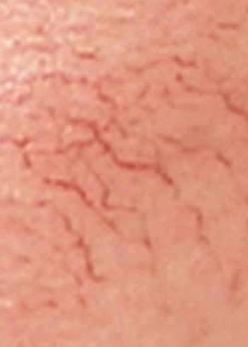 vascular_treatment