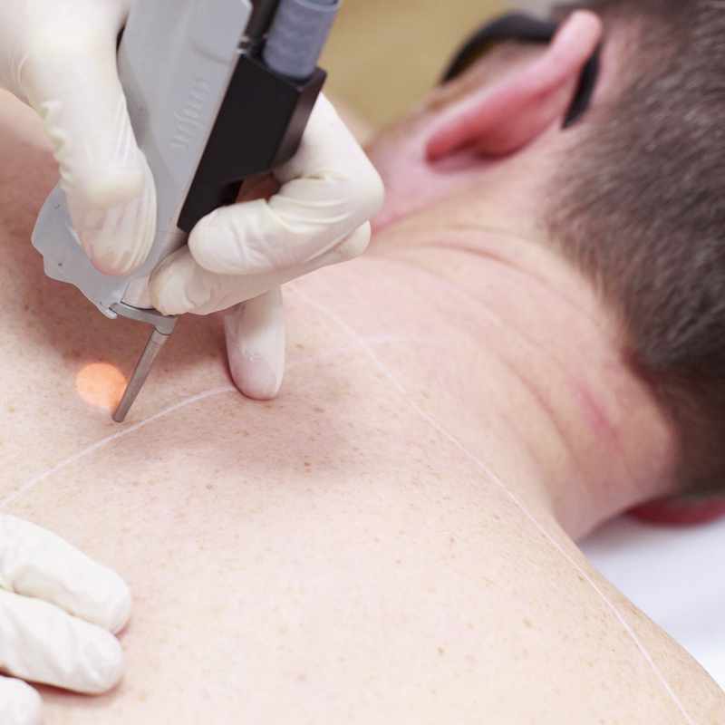 Laser_hair_removal_treatment