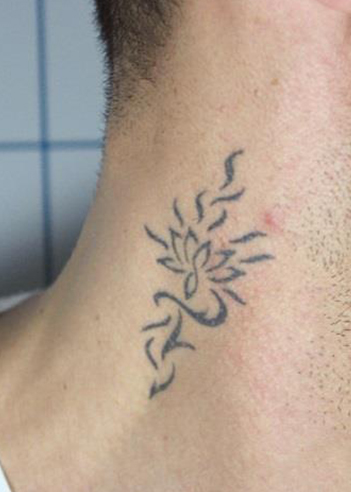 tattoo_removal